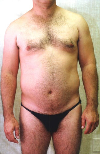 liposuction of abdomen and flanks of man from Los Angeles before 583357