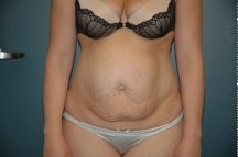 Tummy tuck before 205051