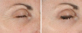 Ultherapy of Eyes and Neck before 561149