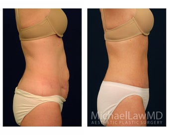 Abdominoplasty - Tummy Tuck 396132