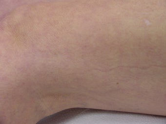Sclerotherapy of spider veins after 109793
