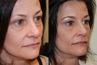 Non-Surgical Facial rejuvenation with Silikon-1000 and Botox. before 500582