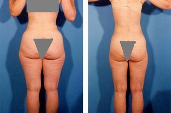 Liposuction before 636105