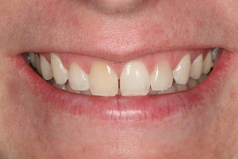 Whitening a single anterior tooth before 343722