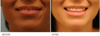 Upper Lip Reduction for Traumatic Lip Deformity 391530