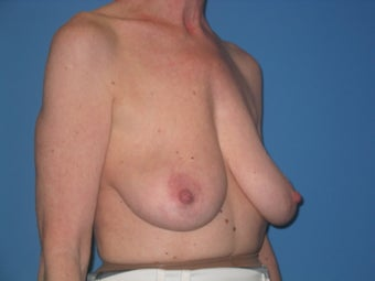Mastopexy before 510749