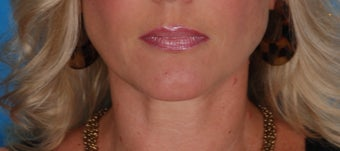Lip Augmentation with Juvederm before 370380