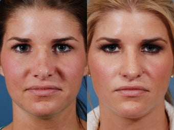 Revision rhinoplasty before 395562