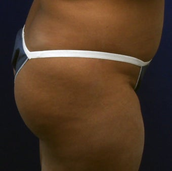 Butt Augmentation before 273286