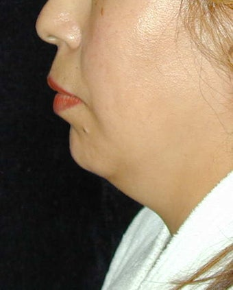 Chin Implant before 101324