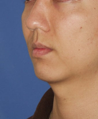 Chin Implant before 414146