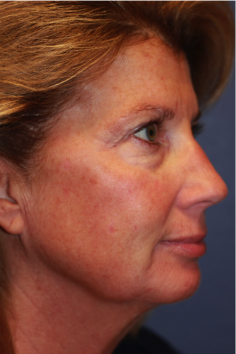 Laser Resurfacing before 408894
