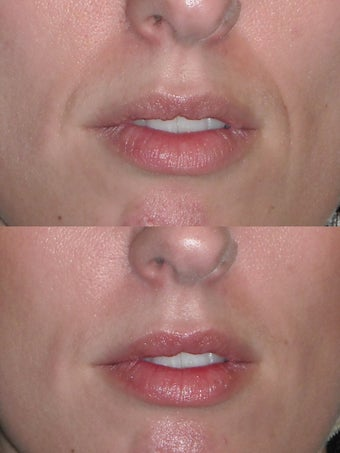 Filler to nasolabial folds before 495119