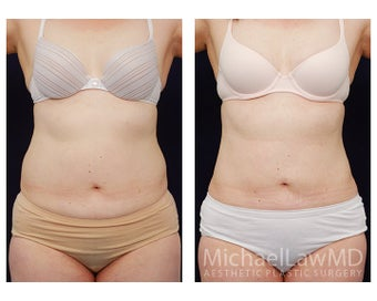 Liposuction before 495473