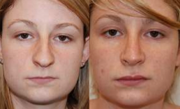 Rhinoplasty and Lip Enhancement with Silikon-1000 before 112461