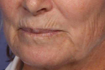 Botox and Juvederm  309243