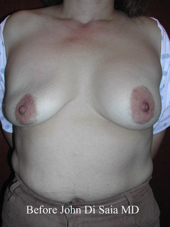 Saline Breast Implant Redo with Scar Removal and Breast Lift before 100738