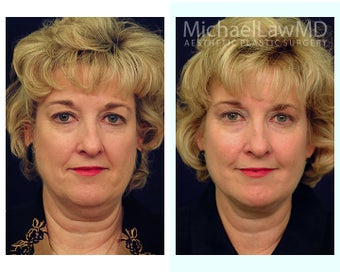 Lower Face and Neck Lift before 391669
