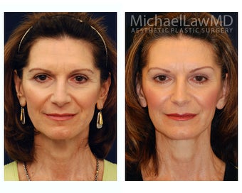 Facial Rejuvenation before 393310