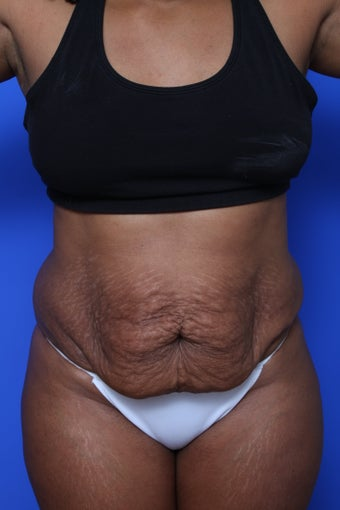 Abdominoplasty before 615612