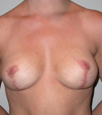 Breast rescue after 281899