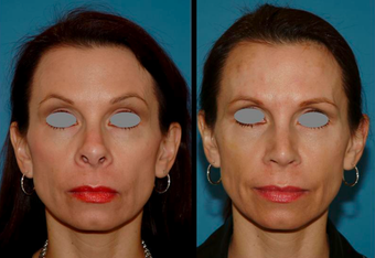 Revision Rhinoplasty (open) before 306788