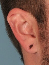 Earlobe Gauge Repair 589635