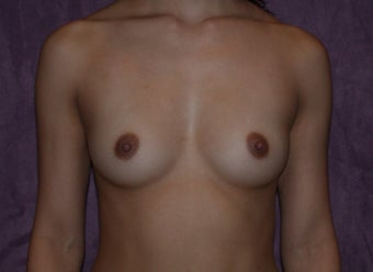breast augmentation before 472141