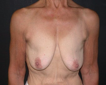 breast lift before 334100