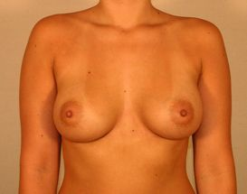 Endoscopic Breast Augmentation after 379556