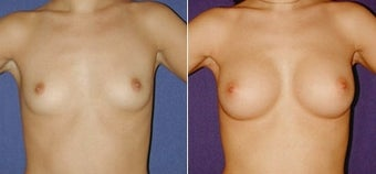 Breast Augmentation before 110005