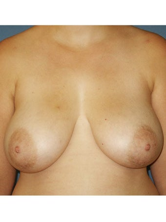 Bilateral Mastopexy before 249983