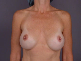 Breast Revision before 307230