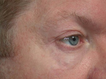 Sclerotherapy (eyelid) after 332441