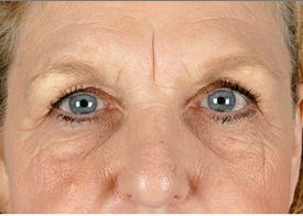 Browlift and Upper/Lower Eyelid Surgery before 253601