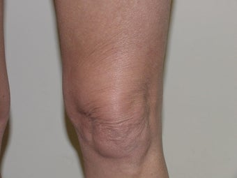 Thermage of knee before after 109791