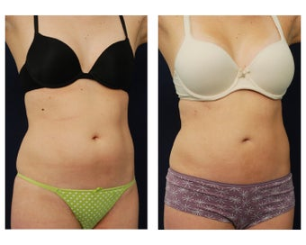 Liposuction after 396995