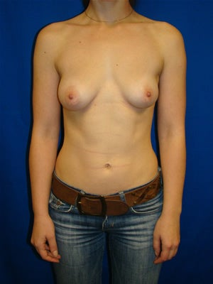 Extra Large Breast Augmentation Surgery, Breast Asymmetry before 138176