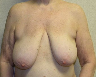 Breast Lift before 411125