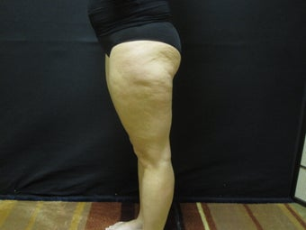 Cellulite Treatment before 491259
