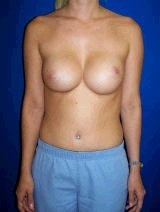 Revision Breast Surgery, Symmastia Repair, Internal Sutures (Internal Bra) before 394941