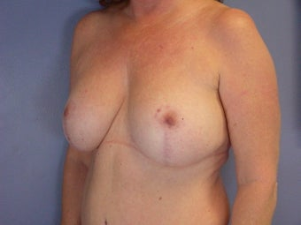 BREAST LIFT/ BREAST AUGMENTATION after 280027