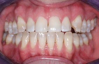 Veneers before 372750