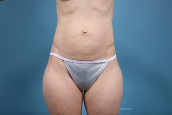 Abdominoplasty before 609514