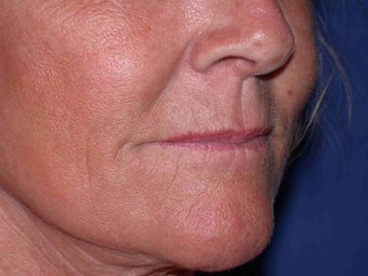 Juvederm to corners of the mouth and Botox to DAO after 100156