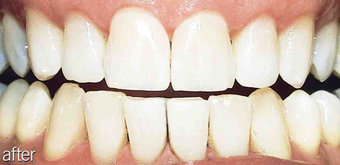Whitening aging teeth after 234632