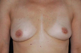 Breast Augmentation before 483529