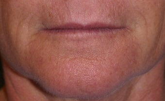 Juvederm filler to the lips before 240877
