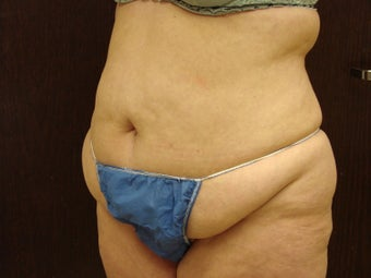 abdominoplasty, liposuction before 597251