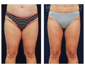 Liposuction before 495067